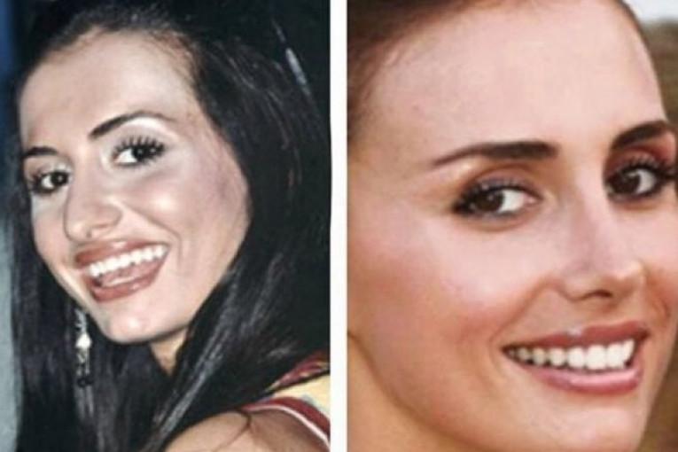 Image result for emina jahovic prije i poslije operacije zuba